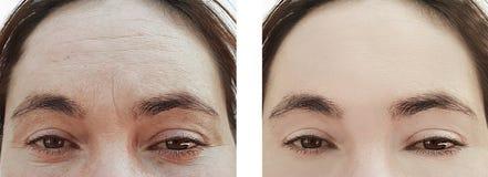 在做法前后,一个老妇人的面孔起皱纹治疗 库存照片