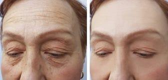 在做法前后,老人手术妇女的面孔起皱纹结果皮肤学治疗面孔胶原, 库存图片