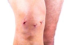 在关节镜手术以后的人膝盖 免版税库存图片