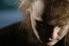 在前额的挫伤。家庭暴力 库存图片
