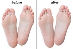 在剥皮前后的妇女脚 免版税库存图片
