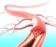 在动脉的Athersclerosis 免版税库存照片