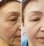 在化妆做法前后,起皱纹年长妇女面孔水合的健康更正,疗法,防皱 免版税图库摄影