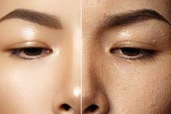在化妆治疗前后 特写镜头女性面孔皮肤 化妆做法、反年龄疗法或者完善的Concealer 免版税库存照片