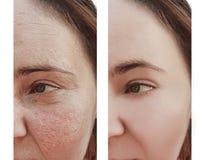 在区别回复更正做法皮肤学前后,妇女皱痕面对 免版税图库摄影