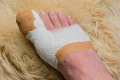 在医院用脚尖踢在大脚趾的操作 库存图片