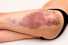 在受伤的妇女腿的挫伤 免版税库存图片