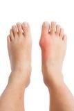 在右脚的痛风炎症 免版税图库摄影