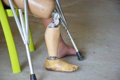 在右腿的假肢 免版税库存照片