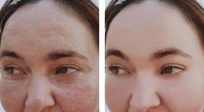 在回复更正做法皮肤学前后,妇女皱痕面对 免版税库存图片
