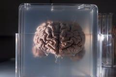 在塑料幻灯片保存的脑子样品 库存照片