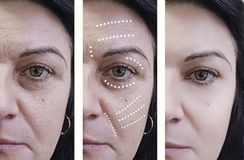 在外科医生回复治疗前后的妇女皱痕 图库摄影