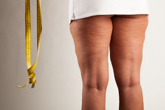 在女孩的脂肪团 免版税库存图片