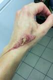 在女性手上的可怕的烧伤 库存图片