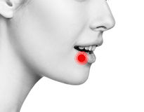 在女性嘴唇的痛处 免版税库存照片