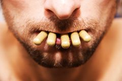 在她的嘴的药片 免版税图库摄影