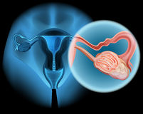 在妇女的卵巢癌图 图库摄影