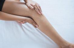 在妇女腿或脚,身体和医疗保健概念的静脉曲张 免版税图库摄影