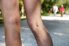 在妇女腿的痛苦的静脉肿和蜘蛛静脉 免版税库存照片