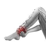 在妇女腿筋的痛苦 免版税库存照片