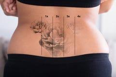 在妇女` s臀部的纹身花刺撤除 图库摄影