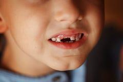 在孩子第一颗牙外面的秋天 库存照片