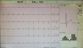 在屏幕上的心电图图象在医院 免版税库存图片