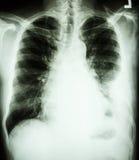 在左肺的胸膜流出由于肺癌 免版税图库摄影