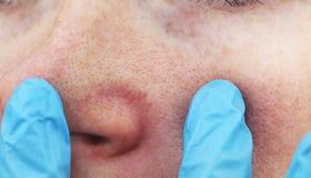 在年轻女人的鼻子的Cuperosis 在面孔的粉刺 由医生的考试 库存图片