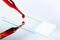 在幻灯片上的1个血液滴下的显微镜 库存照片