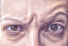 在恼怒的长辈眼睛的微粒 库存图片