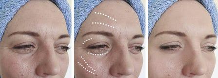 在成熟更正紧张拼贴画前后,妇女面孔起皱纹再生回复举的塑料 免版税库存图片