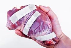 在手术概念以后的人的心脏 库存图片