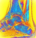在手术haglund残疾mri以后的右脚腕 免版税库存图片