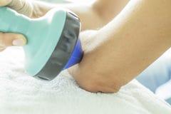 在手肘的冲击波疗法 免版税库存照片