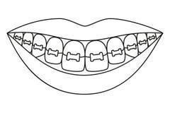 在括号的线艺术黑白健康微笑 向量例证