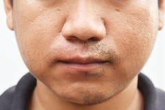 在撤退髭以后的一些髭在表面年轻亚洲人面孔皮肤长期不保重 免版税图库摄影