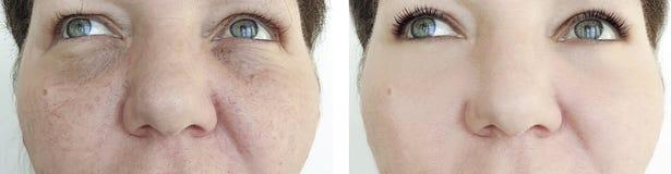 在整容术治疗前后,年长妇女面孔起皱纹皮肤回复 库存图片