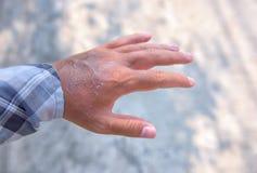 在晒斑以后的手 免版税库存图片