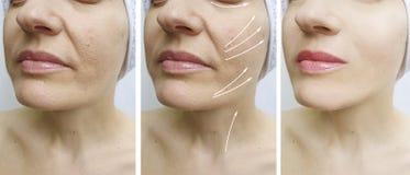 在更正治疗前后,妇女皱痕拉紧下垂的作用对比回复 库存照片