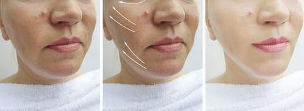 在更正治疗前后,妇女起皱纹紧张疗法下垂的作用对比回复 库存图片