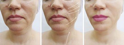 在更正治疗前后,妇女起皱纹紧张疗法下垂的对比回复 库存图片