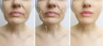 在更正治疗前后,妇女面孔皱痕拉紧下垂的作用对比回复 免版税库存照片