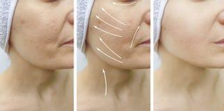 在更正治疗前后,妇女面孔起皱纹紧张作用对比举的回复 免版税库存照片