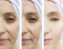 在更正治疗前后,妇女面孔起皱纹紧张作用对比回复 免版税库存照片