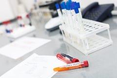 在桌上的玻璃管在实验室 免版税库存照片