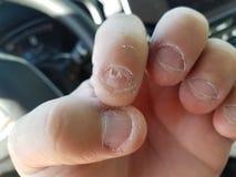 在汽车的讨厌的令人厌恶的被咬住的和剥的指甲盖 库存图片