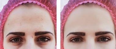 在治疗整容术前后,女性眼睛起皱纹圈子 免版税图库摄影