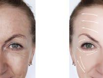 在治疗箭头前后的妇女皱痕更正举的对比结果 库存图片