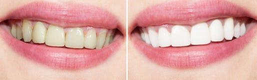 在漂白前后的牙 免版税库存照片